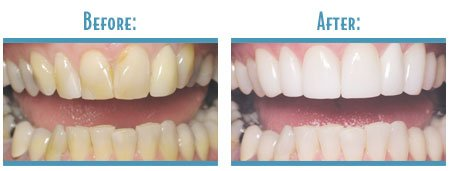 Teeth Whitening Arlington Texas