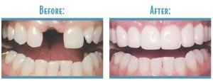 before & after dental implant