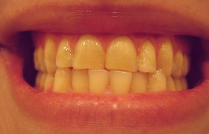 Teeth worn down by bruxing