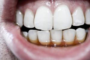 coffee_teeth