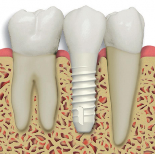 Ceramic vs. Titanium Implants
