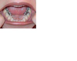 mercury amalgam fillings in molars