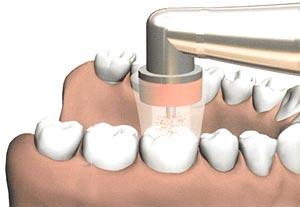 dental ozone