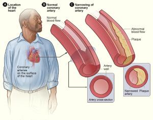 heart disease diagram