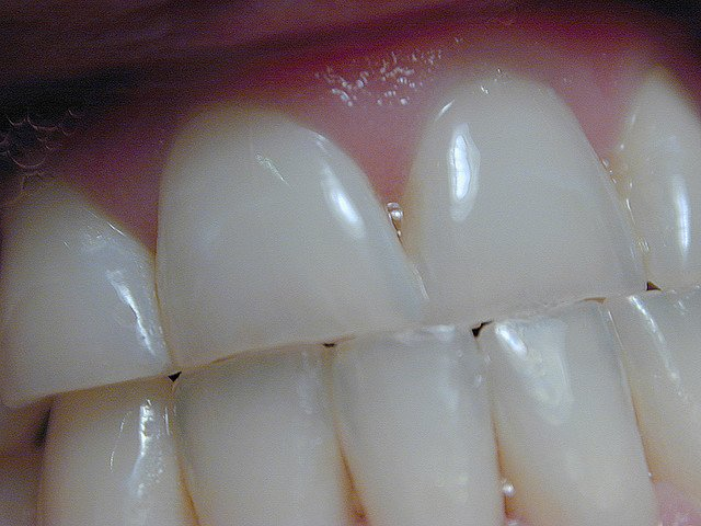 Guest Post: Trace Minerals for Your Teeth