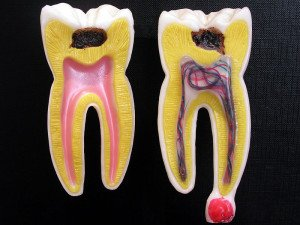 tooth models showing caries