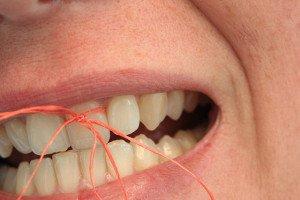 floss tied around tooth