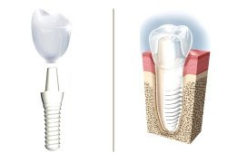ceramic dental implant