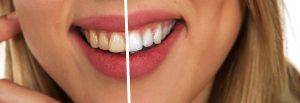 before & after smile whitening
