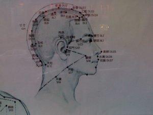 acpuncture diagram of head