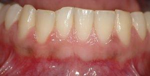 healthy gums