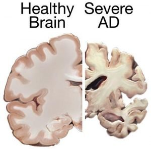 healthy brain Alzheimer's brain compared