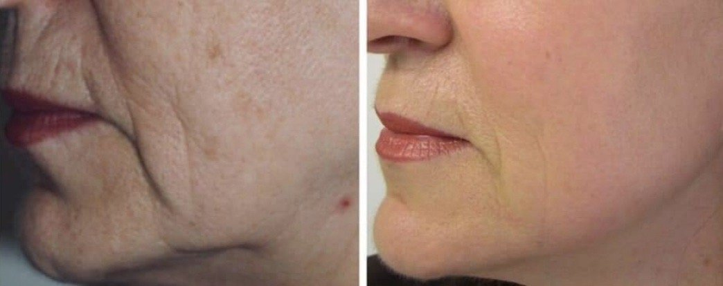 A Laser Facial Makeover from Your Dentist? Yes!