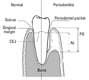 periodontal diagram