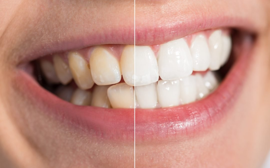 Do Over-the-Counter Tooth Whitening Products Really Work?