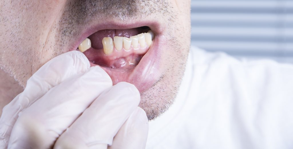 man showing missing tooth