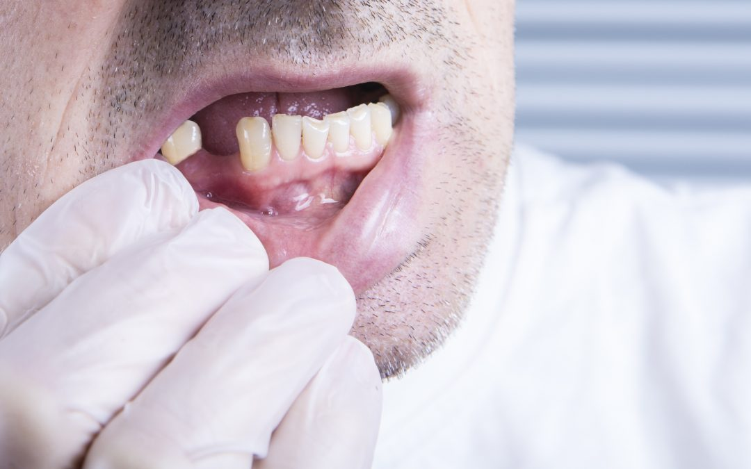 Why You Need to Replace Missing Teeth (It's Not Just About Appearance)
