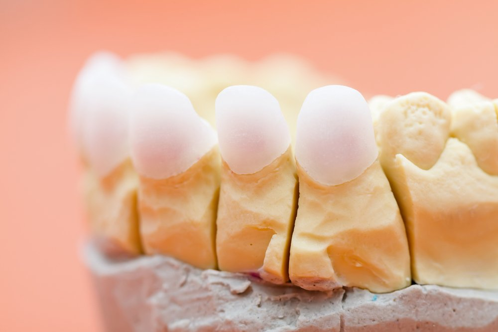 Just How Good Are Zirconia Crowns & Other Restorations?