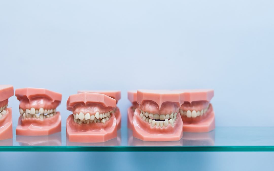 A Bad Bite Can Mean More Decay, Gum Disease